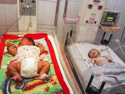 India, nato bambino gigante: pesa quasi 6 kg