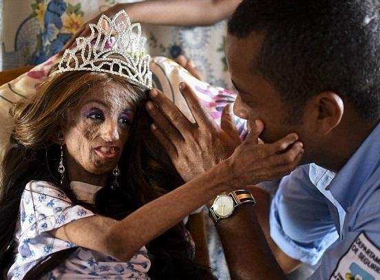 magali progeria