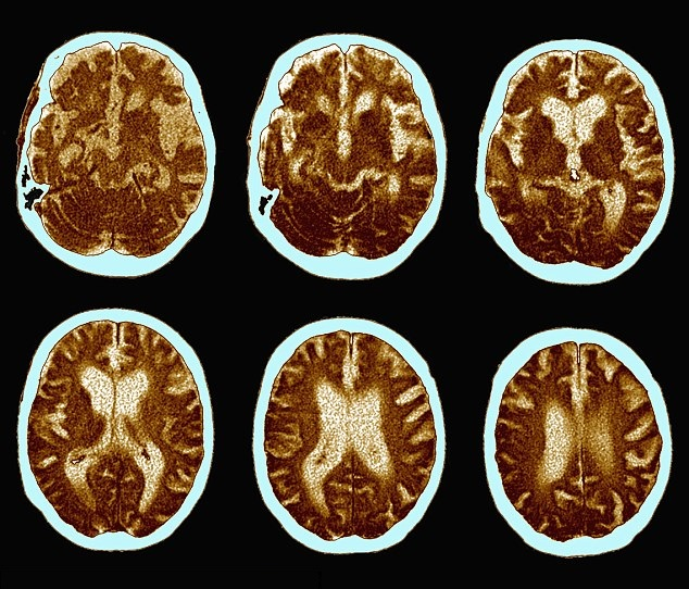 geni cervello
