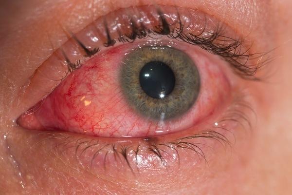 Zika virus occhio rosso