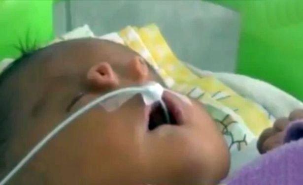 angelito-bambino-due-nasi-sindrome-di-patau