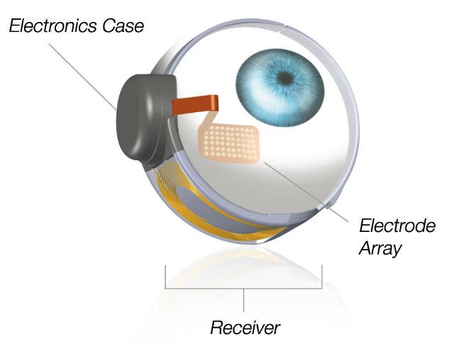 argus-2-occhio-bionico-fran-fulton-second-site