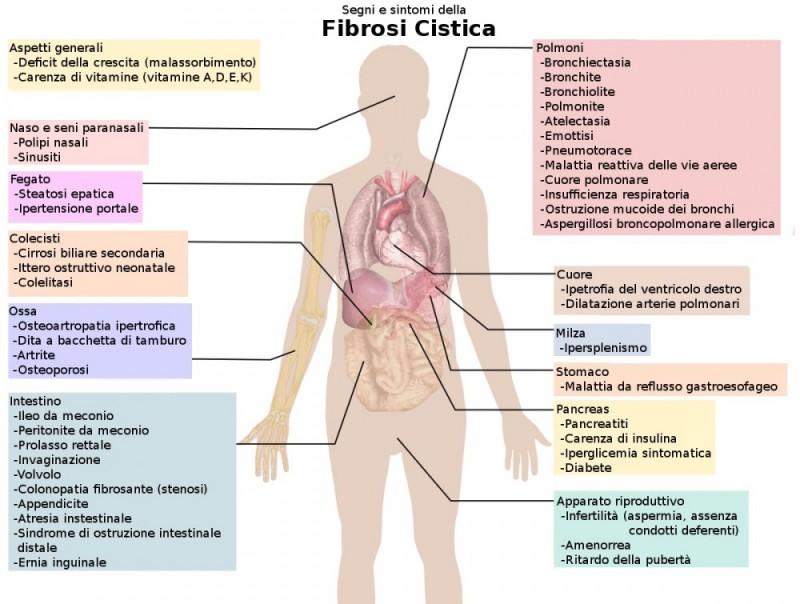 fibrosi-cistica