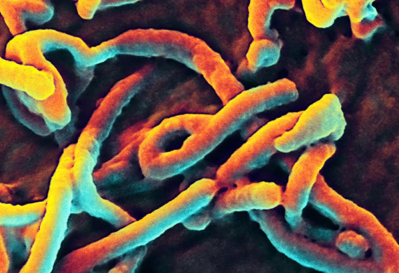 ebola-virus-che-cos-e
