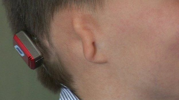 kieran-bambino-nato-senza-orecchie
