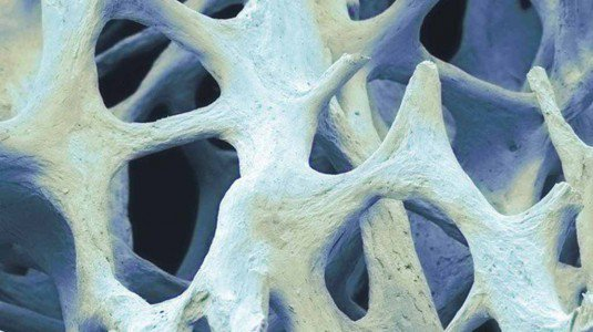 Osso bionico