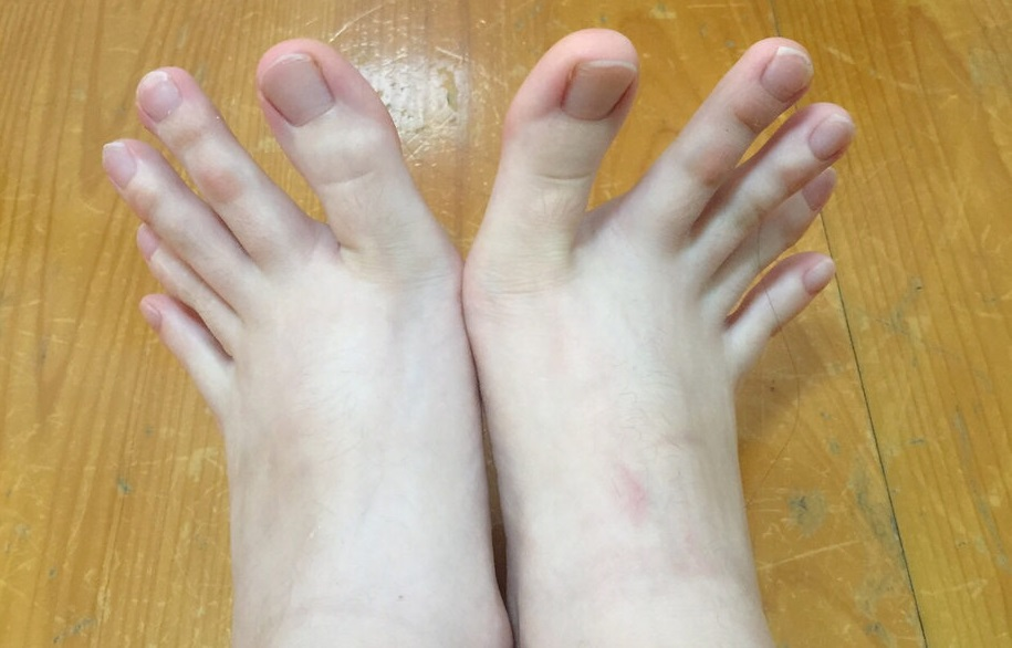 dita piedi