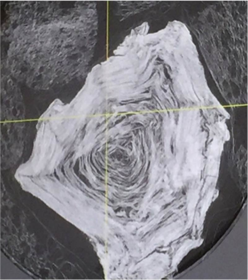 papiri-ercolano-1