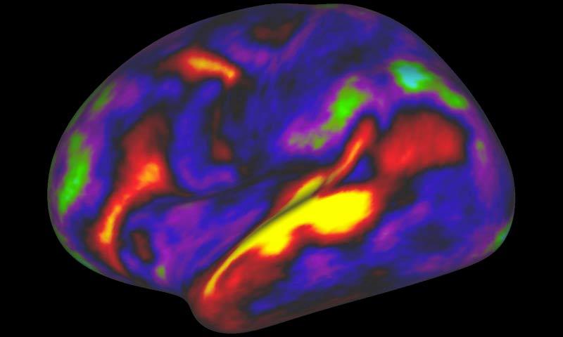 mappa dettagliata del cervello