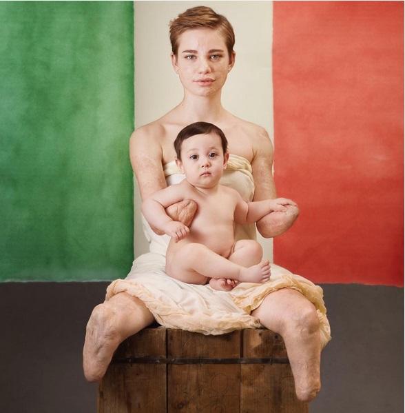 bebe-vio-meningite
