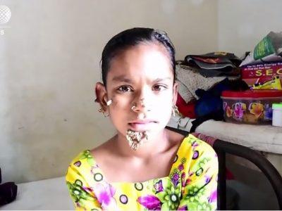 In Bangladesh il primo caso al mondo di bambina-albero