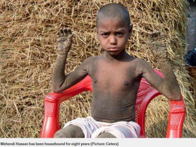 Bambino di 8 anni affetto da una rara condizione che lo trasforma in una pietra