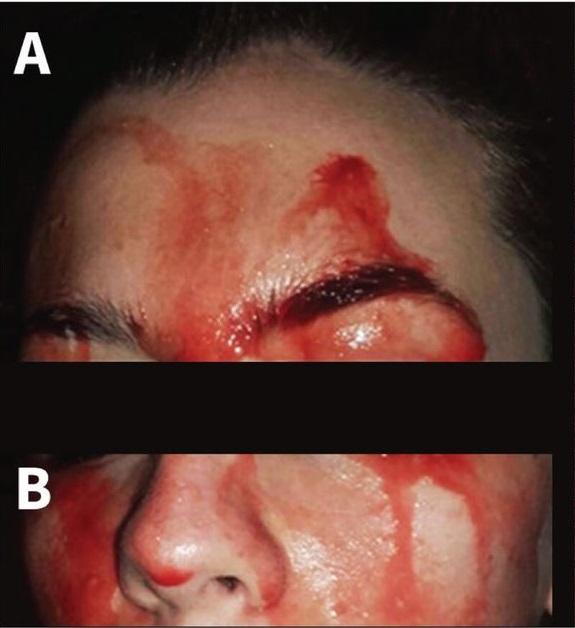 Ragazza suda sangue da viso e mani due ricercatori spiegano il fenomeno