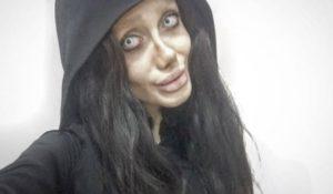 La storia di Sahar Tabar, 50 interventi per assomigliare alla Jolie di plastica